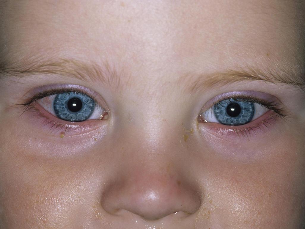 Глаза гноятся у новорожденного