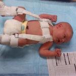 Дисплазия тазобедренных суставов у новорожденного симптомы