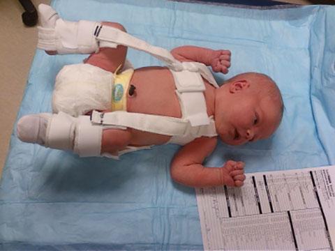 Диспазия тазо-бедренного сустава у ребенка нестабильные суставы