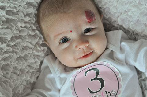 гемангиома на лбу малыша