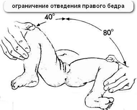 ограниченность отведения ножки грудничка