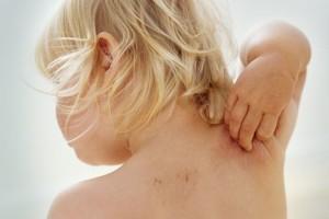Ребенок расчесывает спину