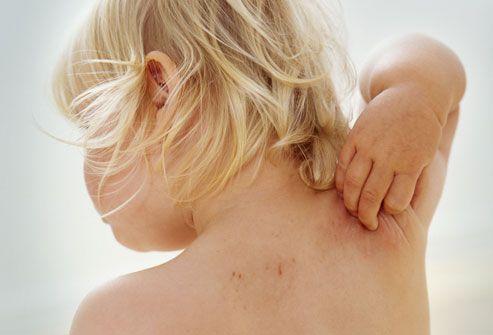 Лечение пищевой, контактной и бытовой аллергии у грудничков