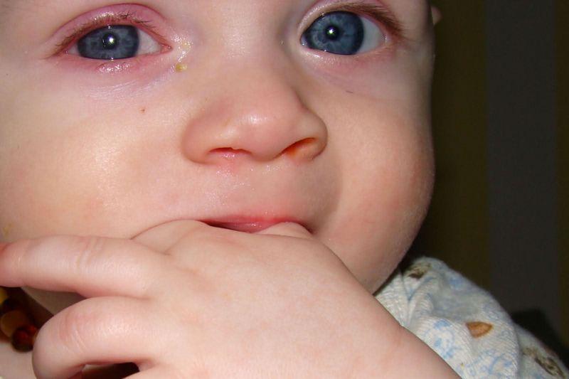 В чем причина красных глаз у грудничка?