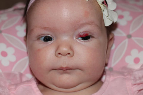 Причины появления и лечение гемангиомы у новорожденных на веке