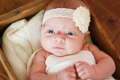 гемангиома между глаз ребенка