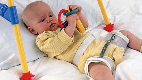Изображение - Детский массаж при дисплазии тазобедренных суставов dysplasia_clicky_hips_baby_Alamy