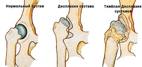 дисплазия у грудничка