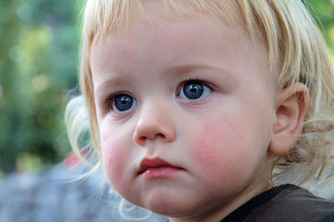 Все о причинах появления диатеза у ребенка до года. На что маме стоит обратить внимание