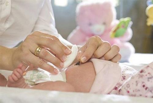 Как правильно обрабатывать пупочную ранку новорожденного при помощи раствора марганцовки?