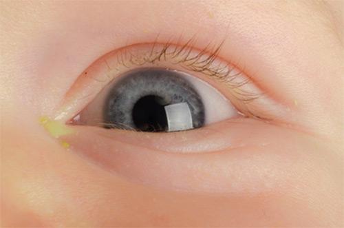 детский глаз
