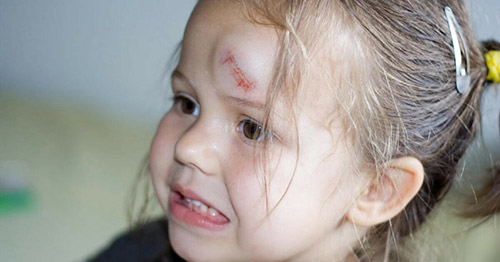 шишка на голове ребенка